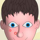 Pimples Squeezing