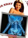 Máy quét X Ray